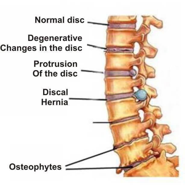 tratamentul osteomielitei gleznei este posibilă vindecarea artrozei articulației șoldului