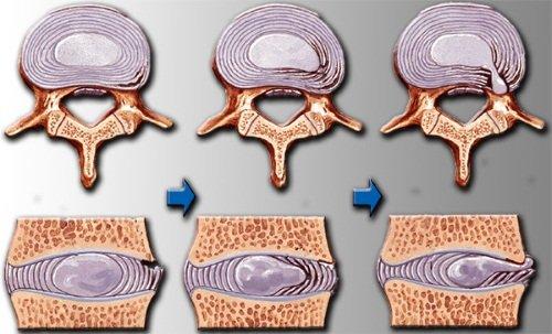 artrita sinovială a genunchiului artroza articulației brațului