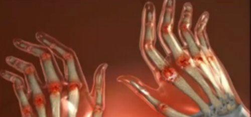 tromboflebita din dureri articulare