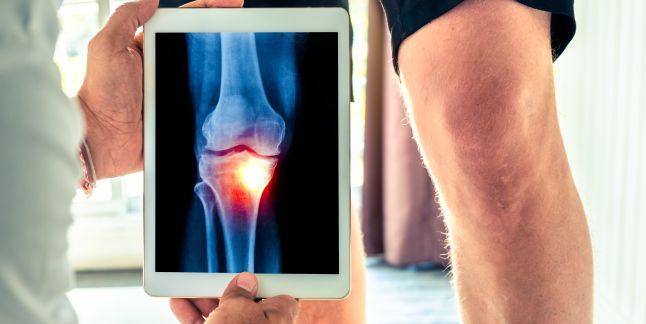 articulațiile doare pe măsură ce se vindecă tratamentul gleznei la domiciliu