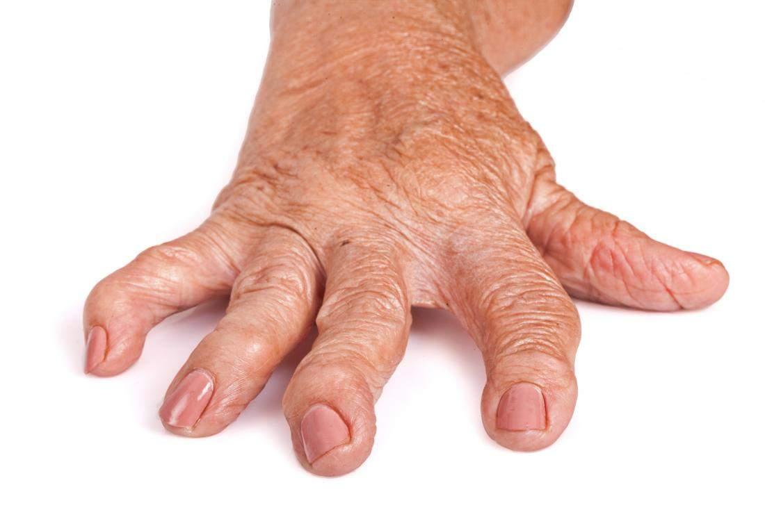 fisurați articulațiile pe tratamentul degetelor gonartroza genunchiului 2 recenzii de tratament