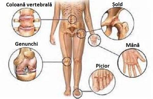 unguente care ameliorează inflamațiile și durerile articulare medicamente pentru boala articulară a mâinilor