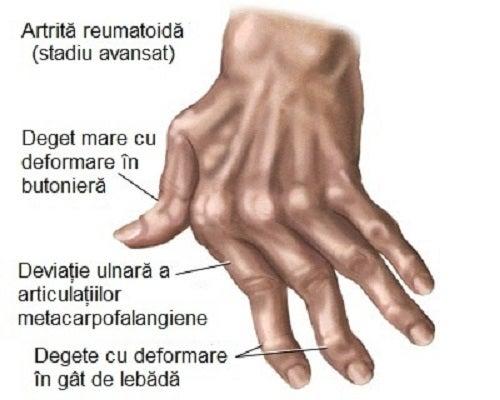 tratamentul artritei degetelor în dureri dureroase articulare