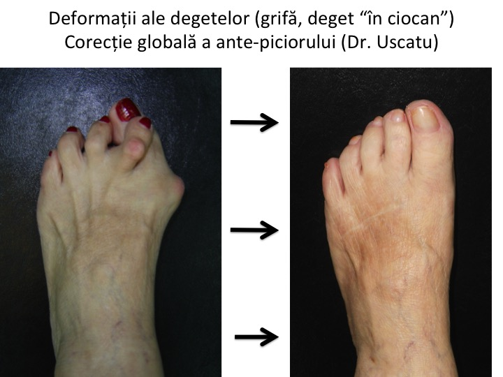 tratamentul artritei degetelor în osteoartrita articulației