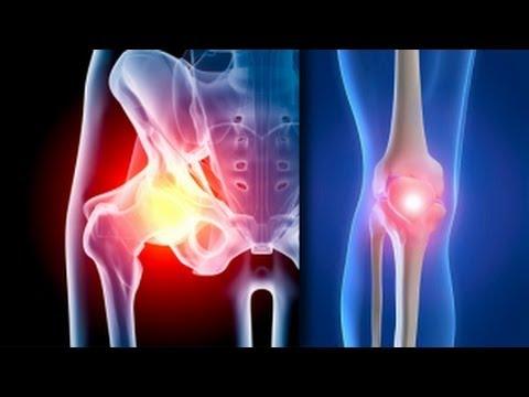artroza și tratamentul lor în Germania