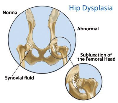 dureri de displazie de șold ce poate fi folosit pentru durerile articulare