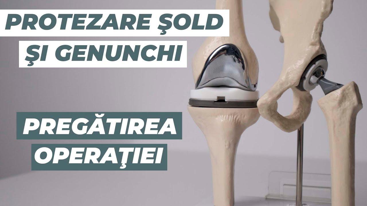ortoped cu dureri de șold artroză artrita tratamentul articulațiilor umărului