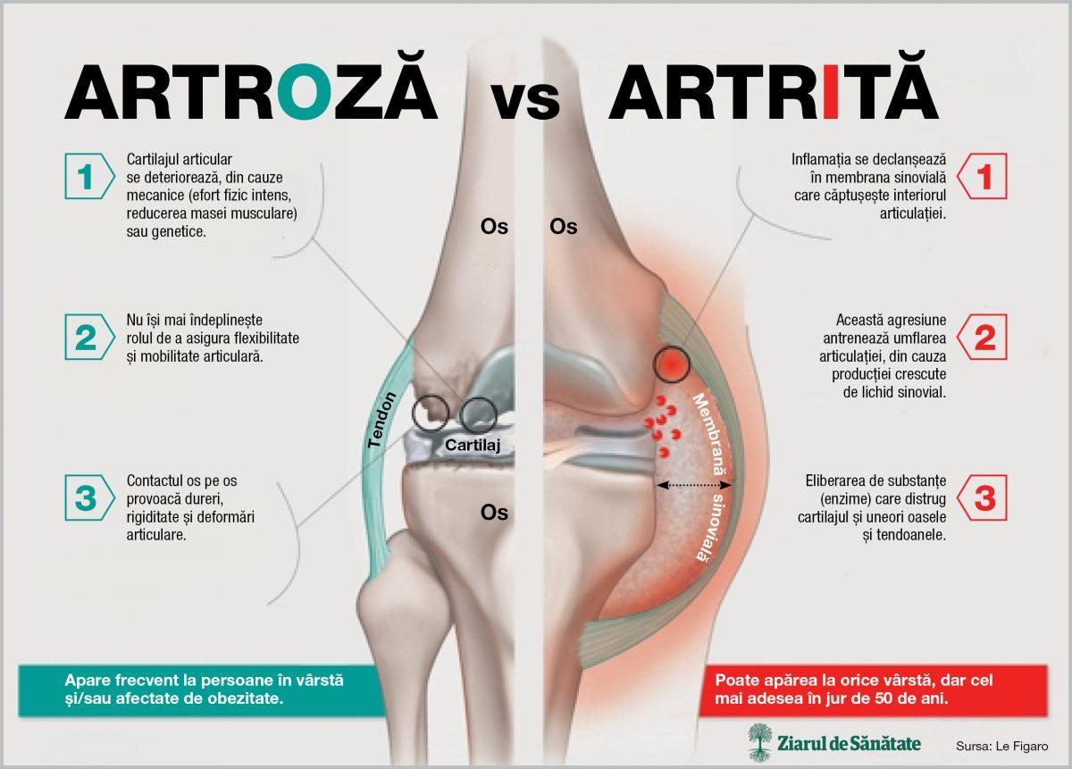 boli inflamatorii și degenerative ale articulațiilor