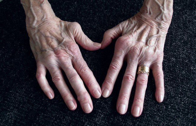 artroza reumatoidă a tratamentului simptomelor piciorului