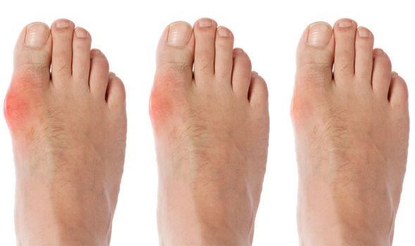cartilaj în genunchi
