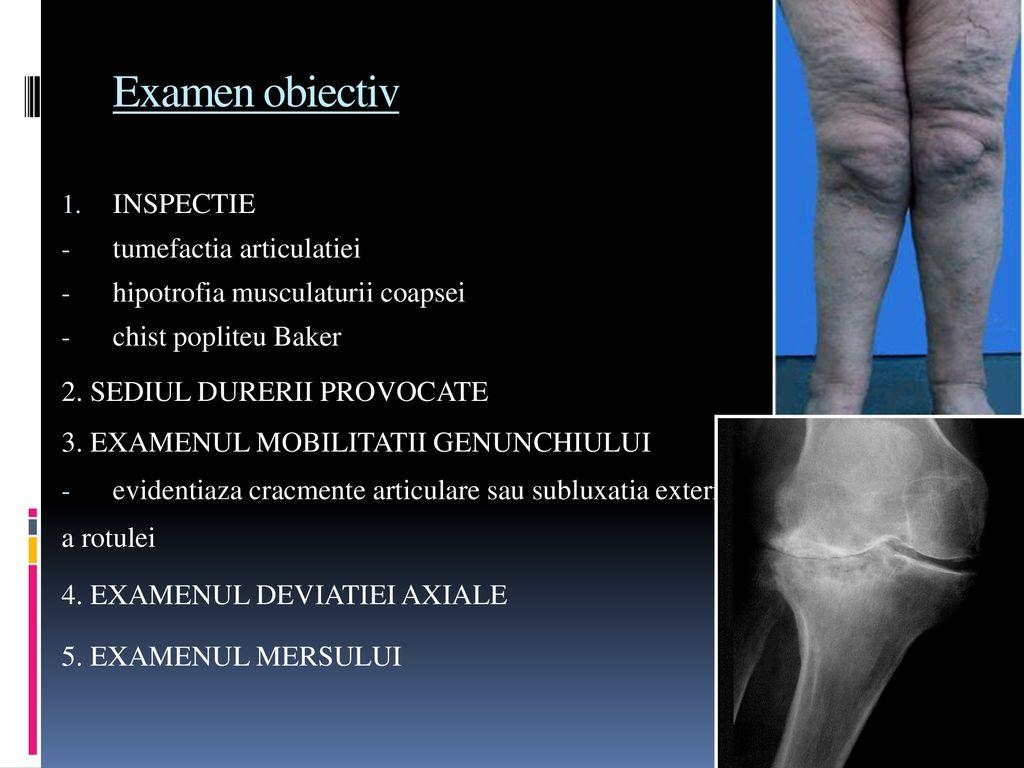 poate pierderea în greutate osteoartrită inversă