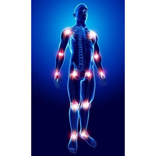 toate articulațiile corpului rănesc cauzează tratament