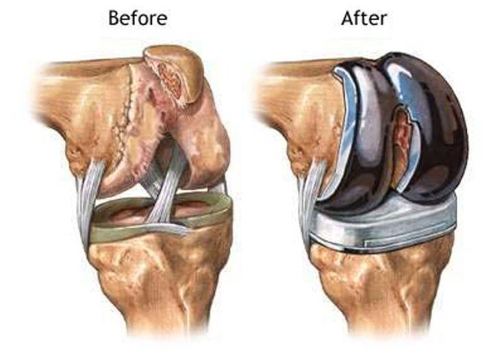tratamentul articulațiilor pelviene de șold leziuni ale tendoanelor la cot