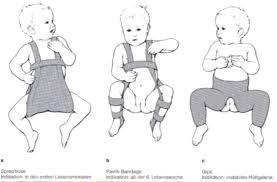 articulațiile la nivelul coatelor și picioarelor doare unguent pentru viață cu osteochondroză