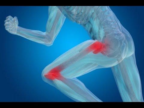 movalis cu artroză a genunchiului recenzii