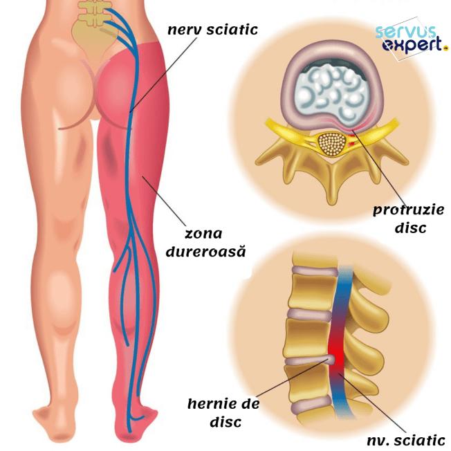 dureri de cancer în articulația umărului tratamentul prolapsului genunchiului