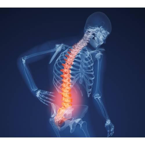 toate articulațiile doare după mâncare poate vindeca artrita degetelor