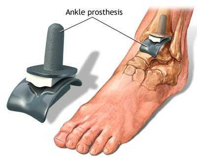 artroza-tratamentul artritei gleznei