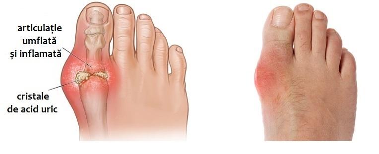 Guta - Boala metabolica pentru care exista tratament | Ayurmed
