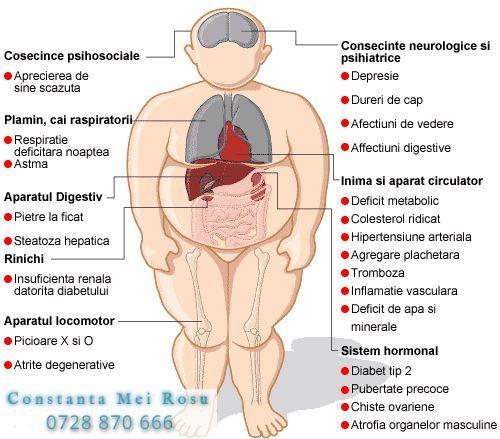 inflamație toracică