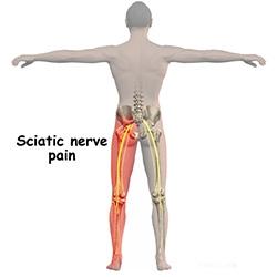 condromalacia preparatelor genunchiului instabilitate articulară în artroză