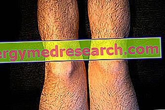 Gonartroza bilaterala: cauze, simptome, tratament