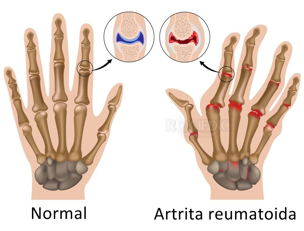osteoartroza antecedentelor medicale ale articulației umărului