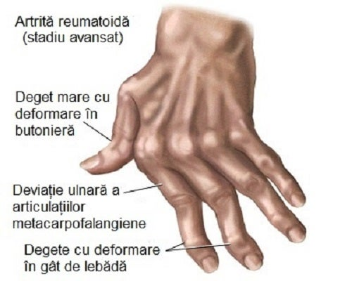 Tratarea artrozei cu peroxid de hidrogen dureri articulare în ploaie