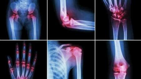 medicament pentru ligamente și articulații într-o farmacie
