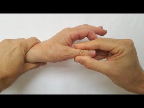 inflamația articulațiilor mari și volatilitatea durerii