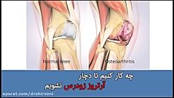 git v. q tratamentul artrozei injecții medicamente dureri articulare