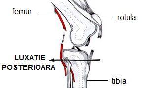 boala de luxatie a genunchiului