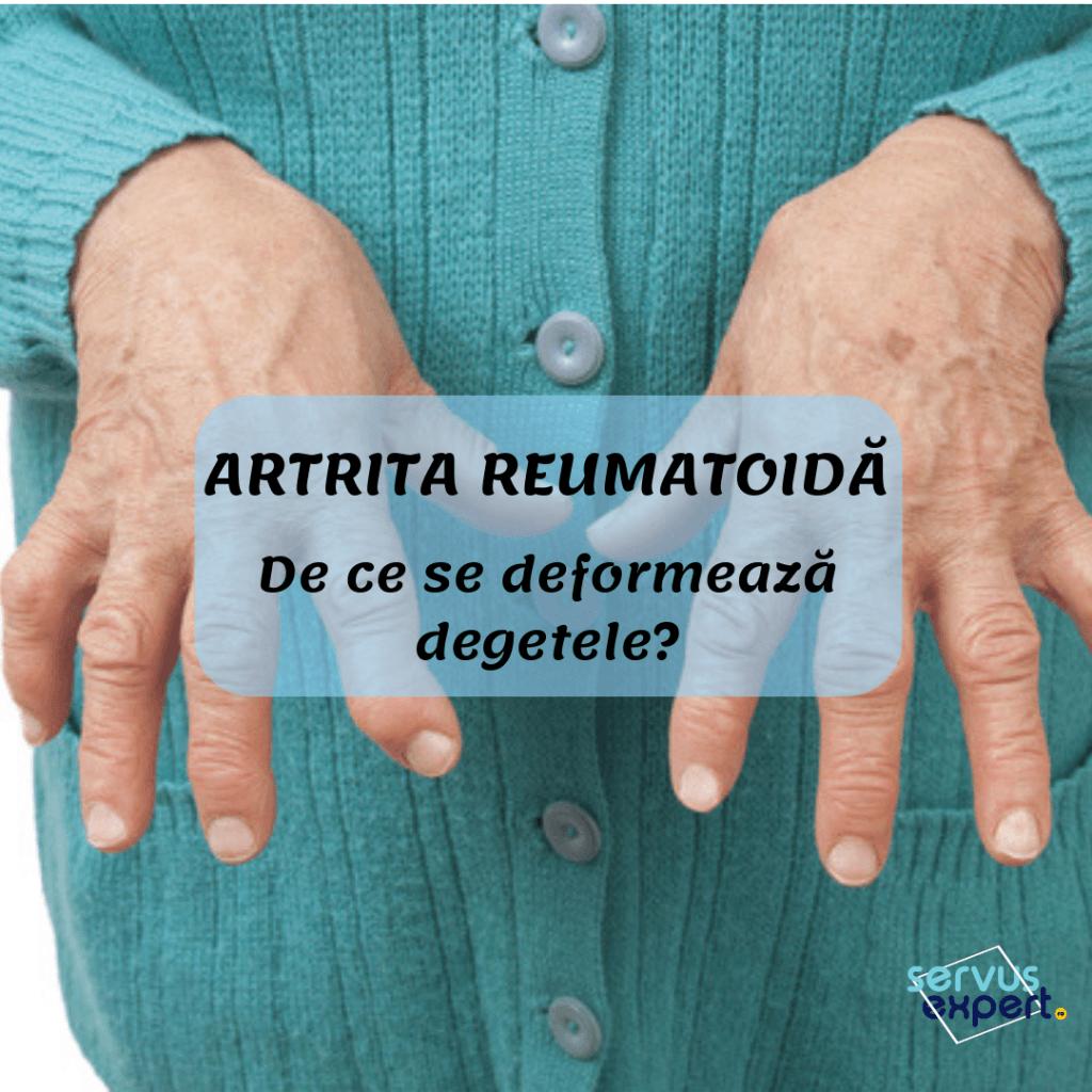 Poliartrita reumatoida | acveplus.ro