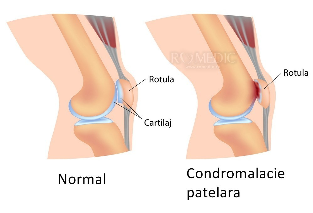 tratament fals articular durere de noapte a articulației șoldului drept
