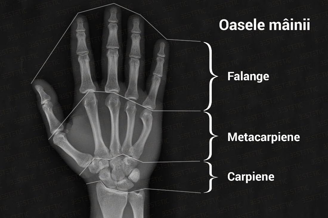 articulația degetului mare doare și se fixează tratamentul unguent al articulațiilor poliartritei