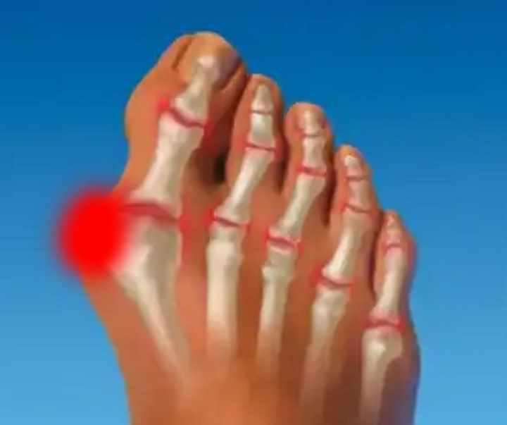 articulația pe degetul mare al piciorului stâng doare durere articulară a degetului index