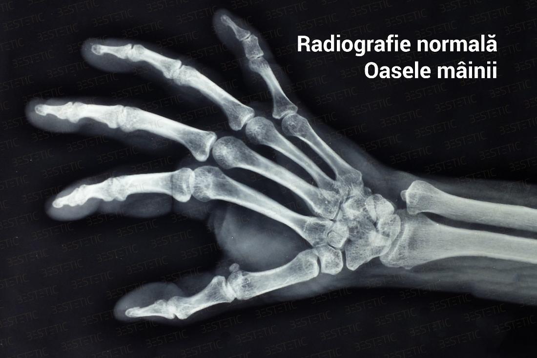 artrita articulațiilor mâinii