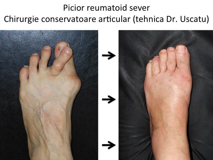 artrita piciorului și a degetelor de la picioare fractură a articulației umărului