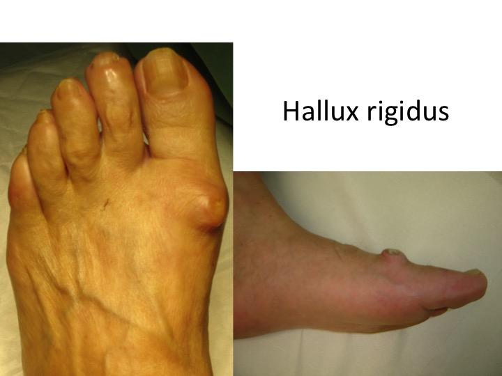 artroza articulației pe degetul de la picior