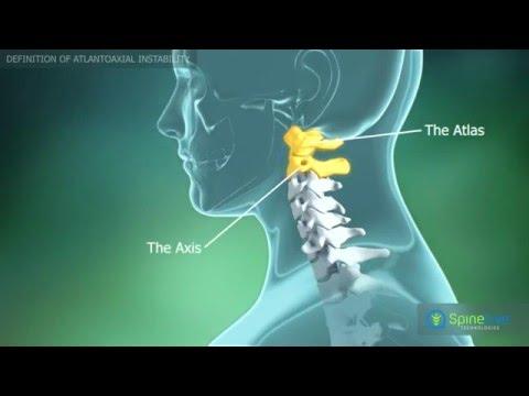 artroza în articulația atlanto axială