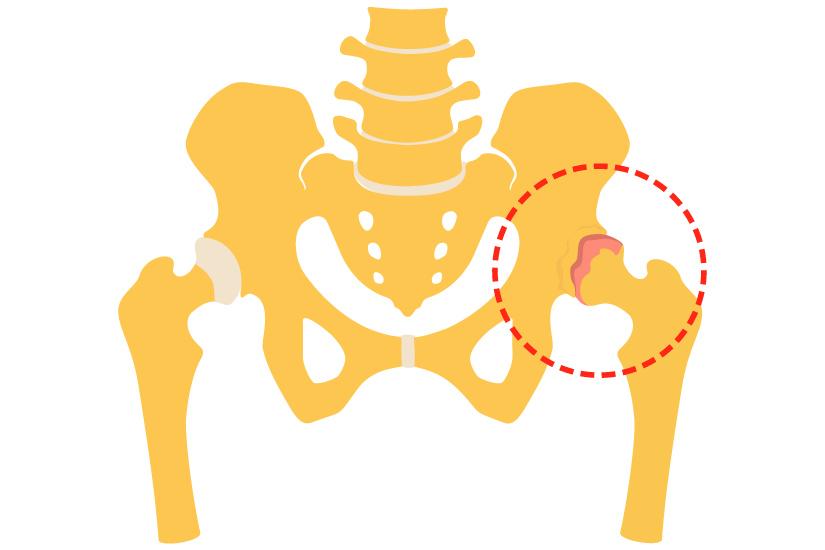 artroza șoldului ce să faci dureri articulare oncologice