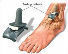 artroza tratamentului articulației gleznei stângi