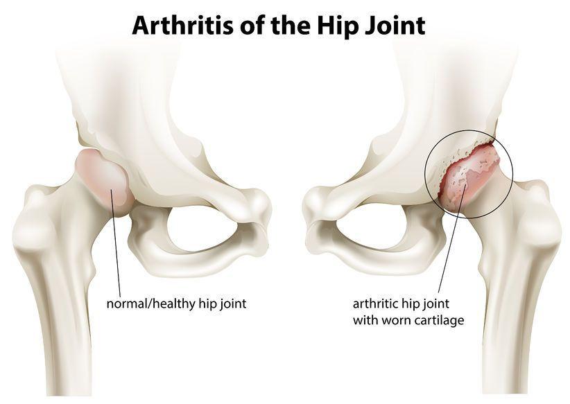 artroza tratamentului articulațiilor șoldului cu condroprotectoare dureri de gleznă la mers