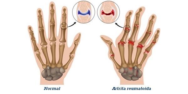 osteochondroza 3 grade ale tratamentului articulației genunchiului trandafir în tratamentul articular