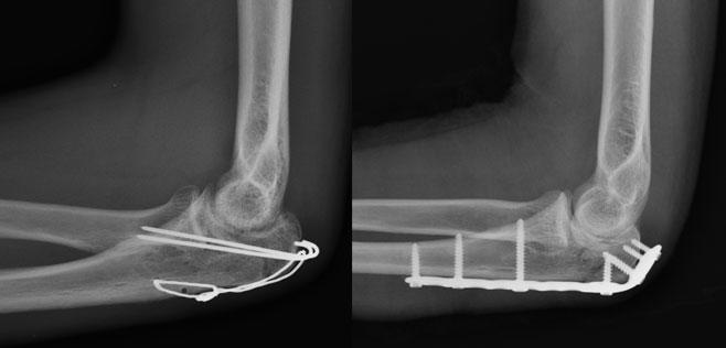 tratamentul artrozei deformante de gradul 3 tratament articular purulent