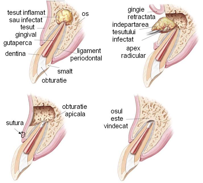boala articulației fațetelor limp din cauza durerii în articulația pelvină