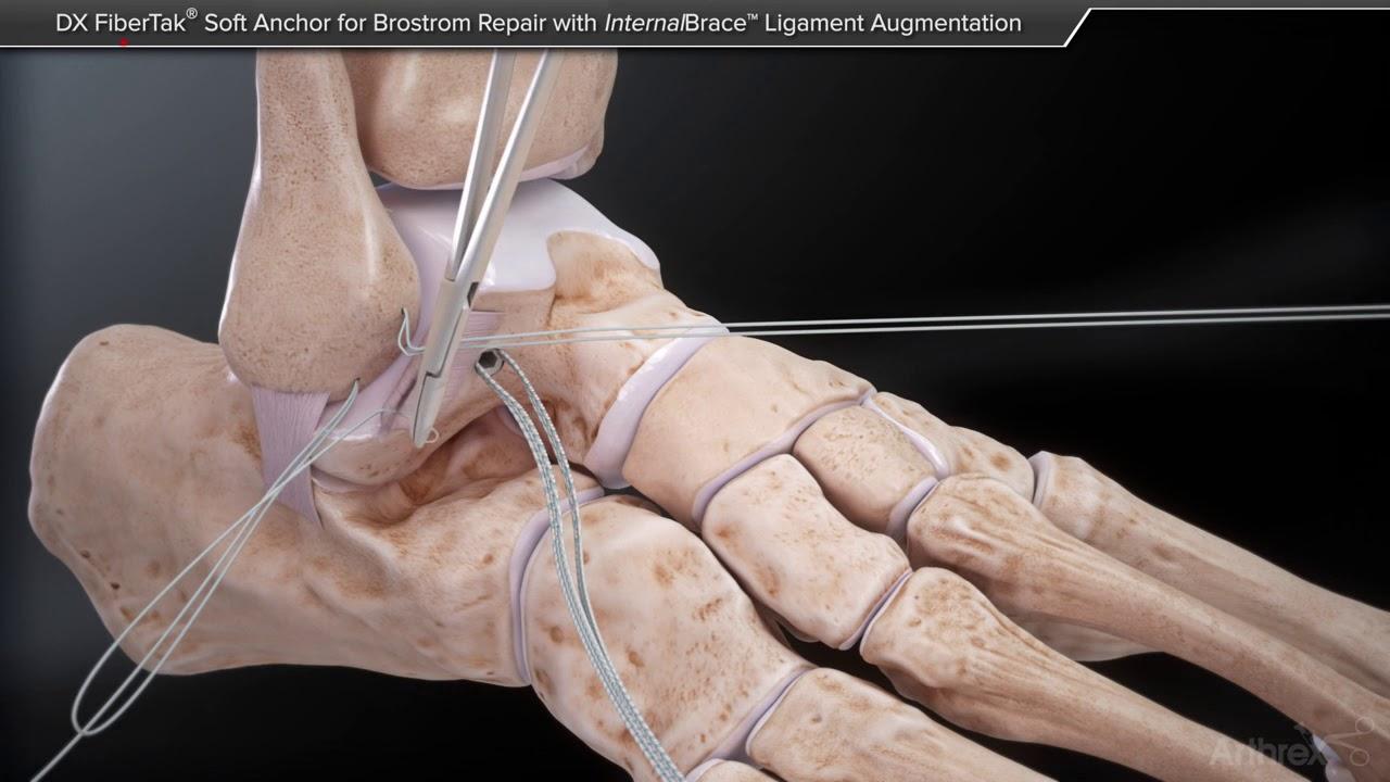 scleroza tratamentului articulației gleznei
