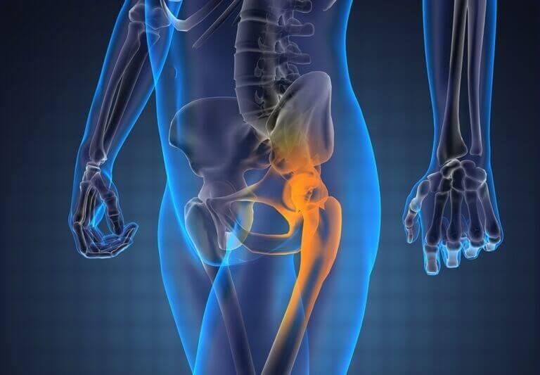 boala de sold este dureri articulare și musculare pe tot parcursul