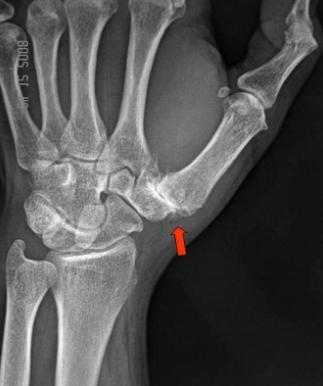artrita metacarpala artroza gradului 3 al articulației încheieturii