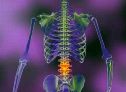 de ce durerea articulațiilor și a coloanei vertebrale